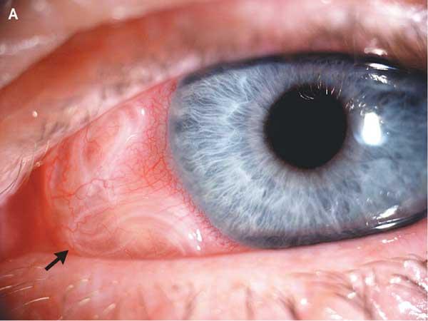 паразиты у человека в носу